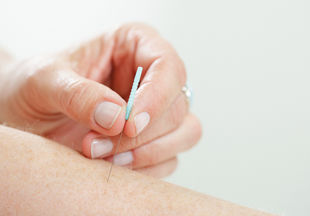 An acupuncturist applies a needle to a patient's skin.